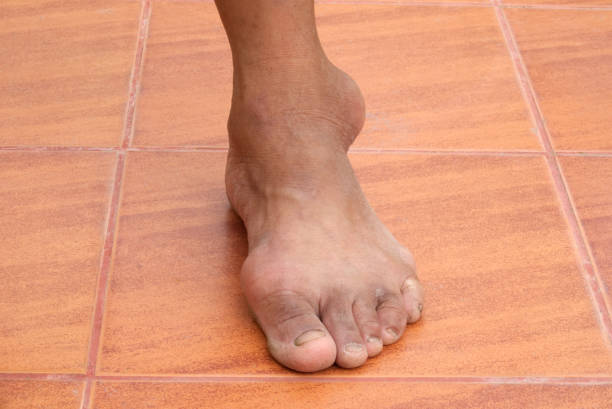 gout - cyst stock pictures, royalty-free photos & images