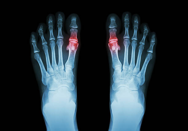 Gout , Rheumatoid arthritis Gout , Rheumatoid arthritis ( Film x-ray both foot and arthritis at first metatarsophalangeal joint ) ( Medicine and Science background ) gout stock pictures, royalty-free photos & images