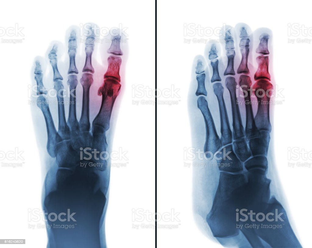 Gouty arthritis . film x-ray of human foot and arthritis at first metatarsophalangeal Joint . stock photo
