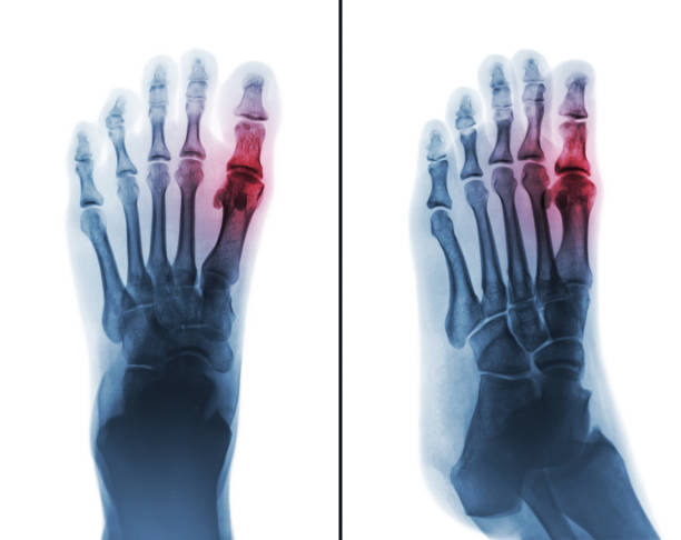Gouty arthritis . film x-ray of human foot and arthritis at first metatarsophalangeal Joint . Gouty arthritis . film x-ray of human foot and arthritis at first metatarsophalangeal Joint . 2 position ( front and side view ) gout stock pictures, royalty-free photos & images