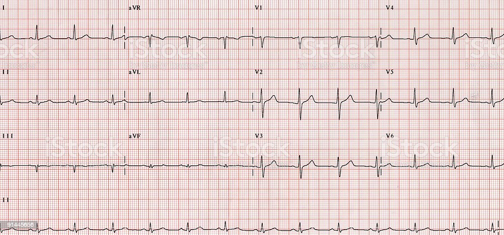 XXL - ECG- graph royalty-free stock photo