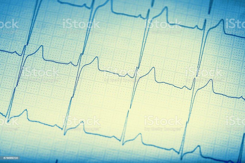 EKG graph.Electrocardiogram ekg ecg stock photo