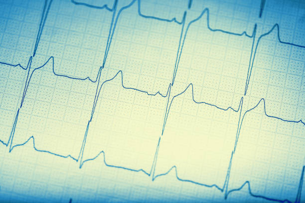 EKG graph.Electrocardiogram ekg ecg stock photo