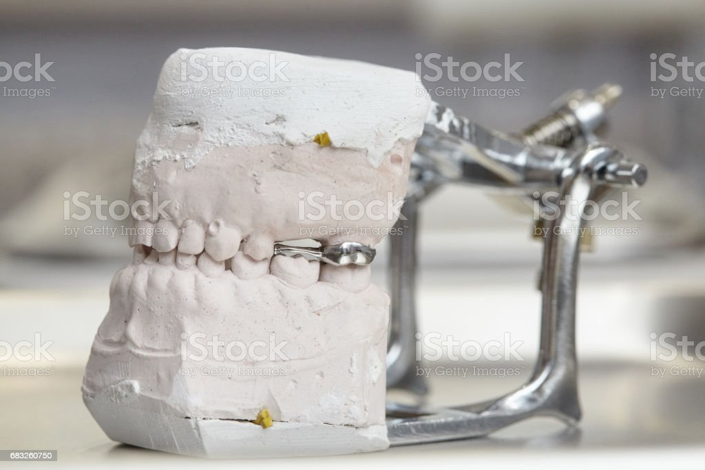 Gray dental prosthesis teeth mold, clay human gums model foto de stock royalty-free