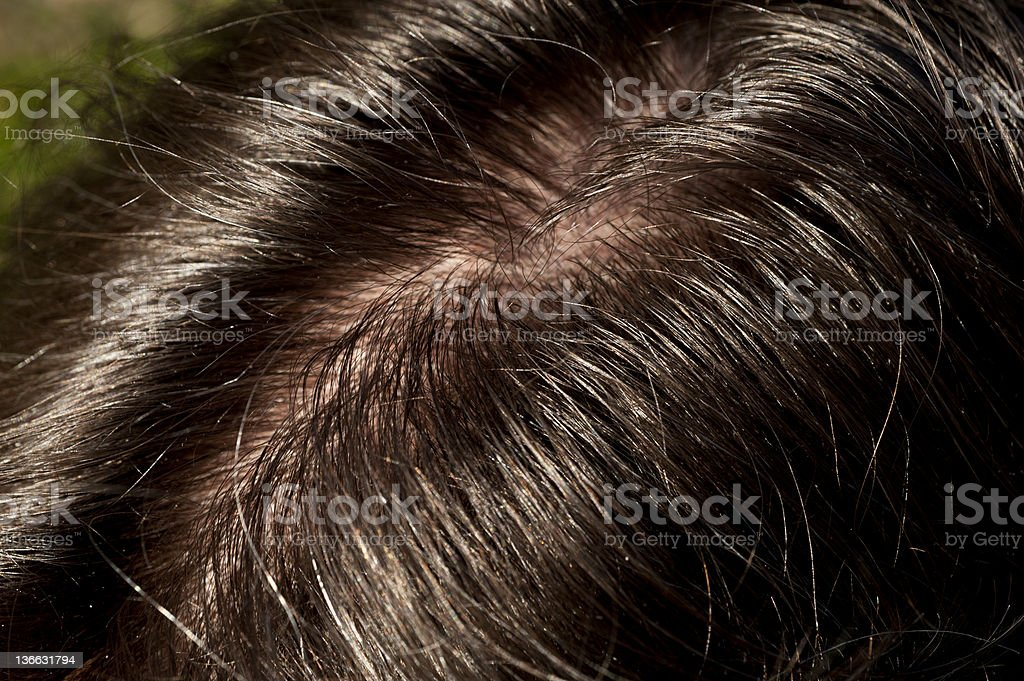 Greasy Hairline stock photo