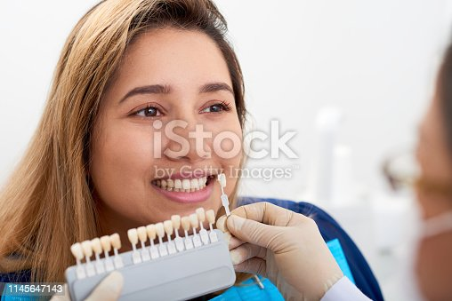Doctor using color samples to show good result after teeth whitening