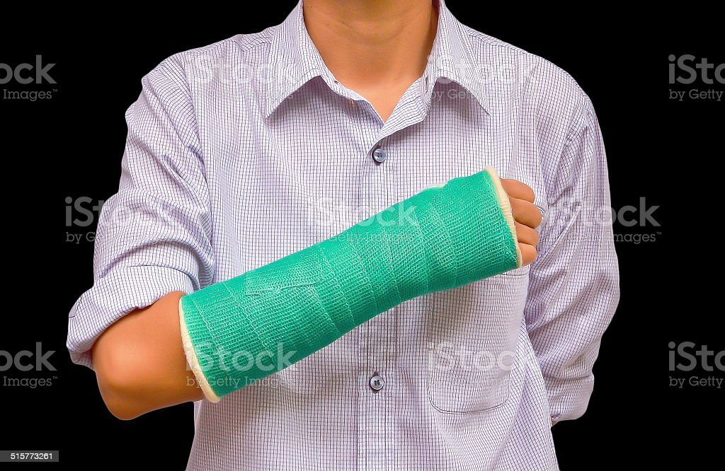 green cast on hand and arm isolated on black background stock photo