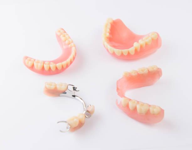 Groupe des prothèses dentaires sur fond blanc - Photo