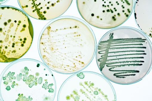 Growing Bacteria in Petri Dishes on agar gel Scientific experiment.