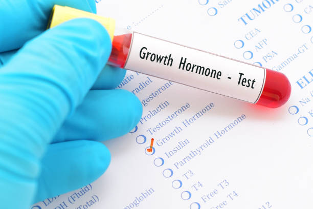 Growth hormone test stock photo