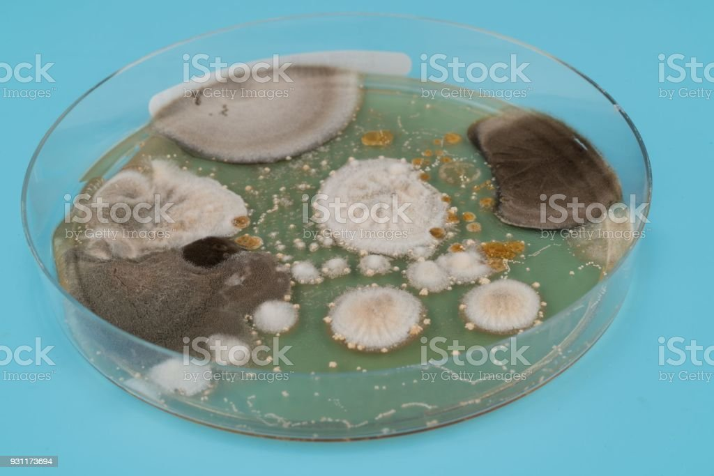 growth of microorganisms in a Petri dish, Bacteria, yeast and m stock photo