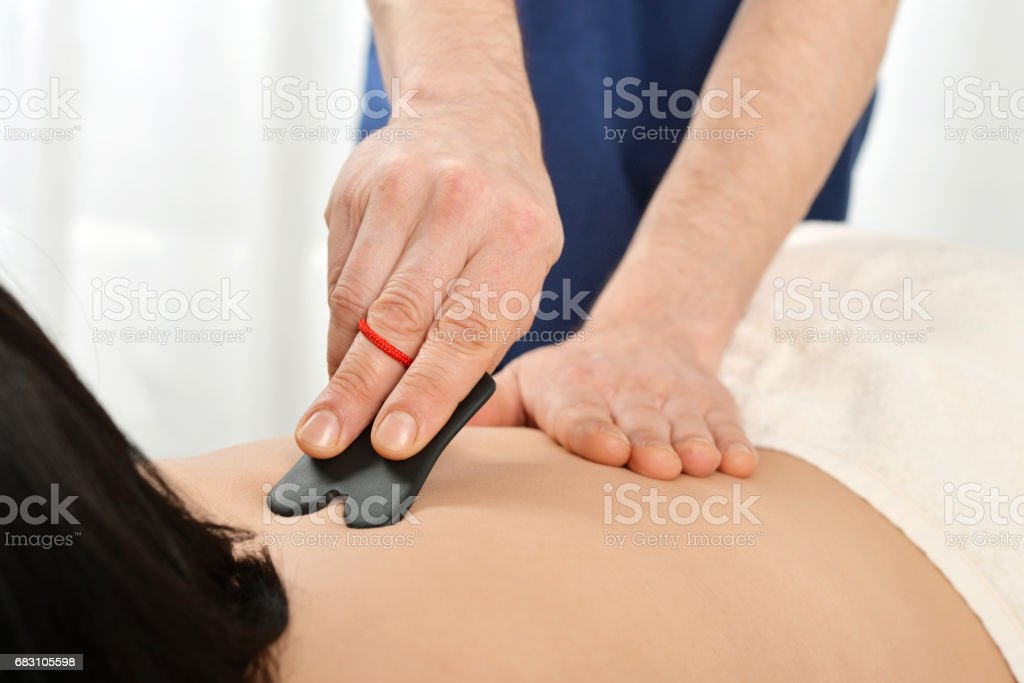 Gua sha acupuncture stock photo