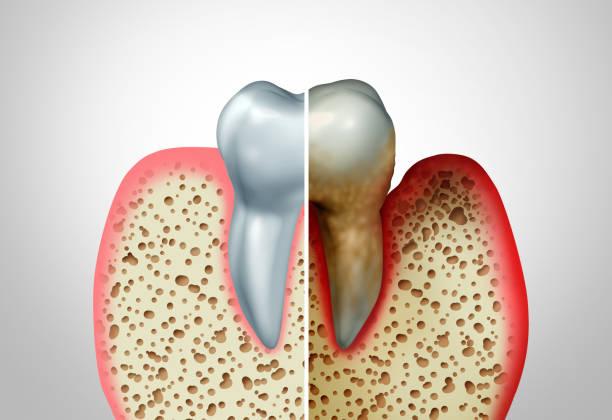 Gum Disease stock photo