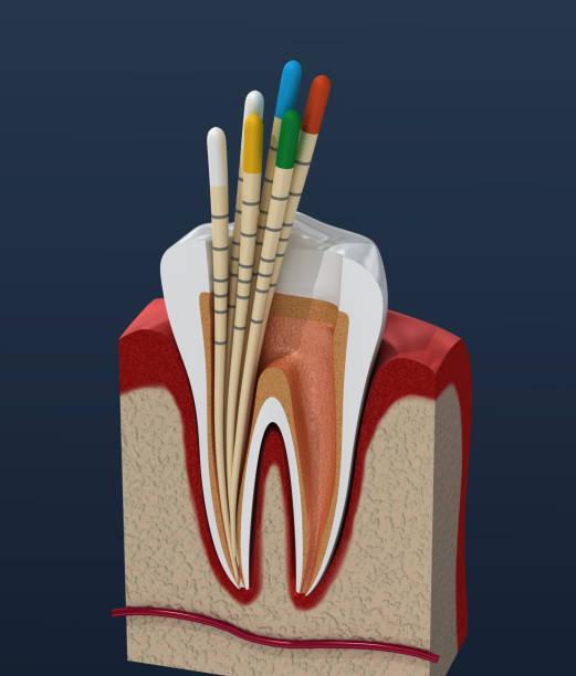 gutta percha endodontologie instrument, tandheelkundige anatomie. 3d illustratie - dentine stockfoto's en -beelden
