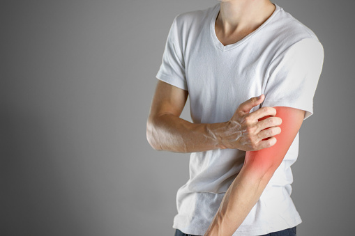 istock Guy in white shirt scratching his arm. Scabies. Scratch the hand. Isolated 895656988