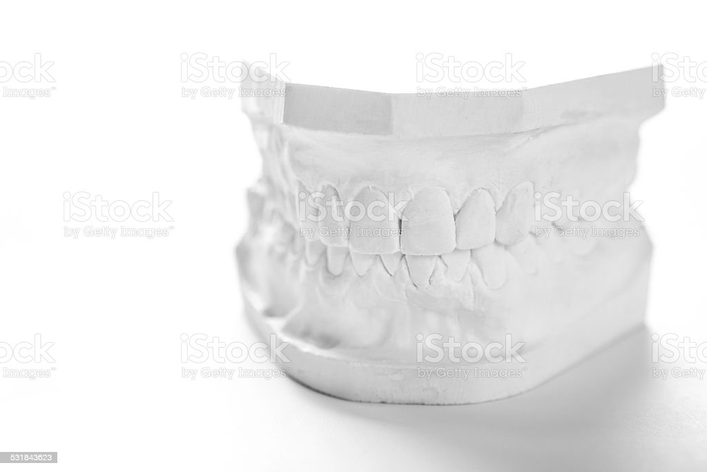 Gypsum model of human jaw on a white background. stock photo