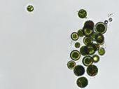 Haematococcus pluvialis algae under microscopic view
