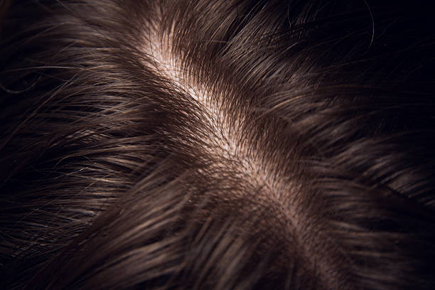 hair and head skin close up hair and head skin close up human scalp stock pictures, royalty-free photos & images