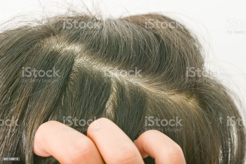 hair dandruff stock photo