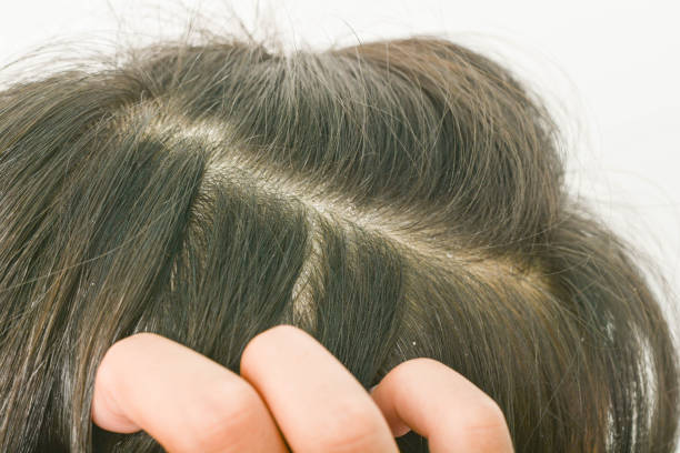 hair dandruff stock photo