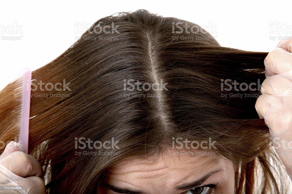 Hair Dye Series 02 (dandruff) stock photo