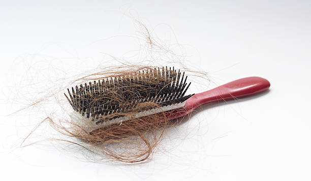 Hair fall on a red comb isolated on white background Hair fall on a red comb isolated on white background hairbrush stock pictures, royalty-free photos & images