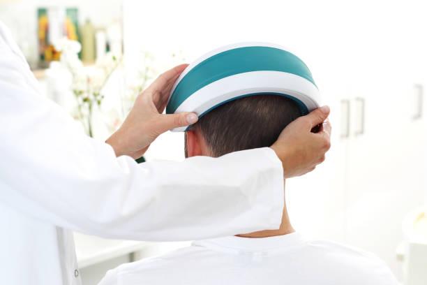 Haarausfall. Ein Mann auf eine Laser-Operation in einem dermatologischen Büro. – Foto