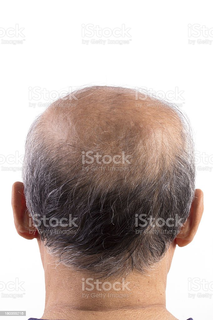 hair loss bald man royalty-free stock photo