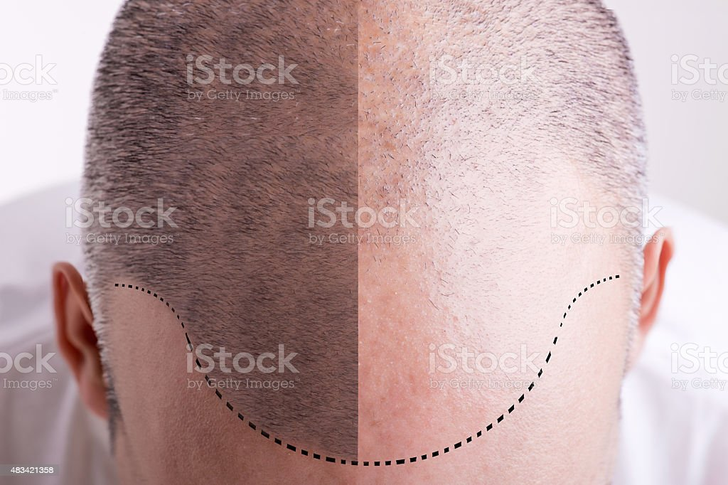 Hair Loss - Before and After stock photo