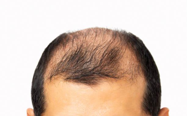 Hair loss concept stock photo