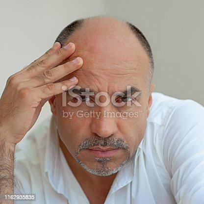 1162960006istockphoto Hair loss 1162935835