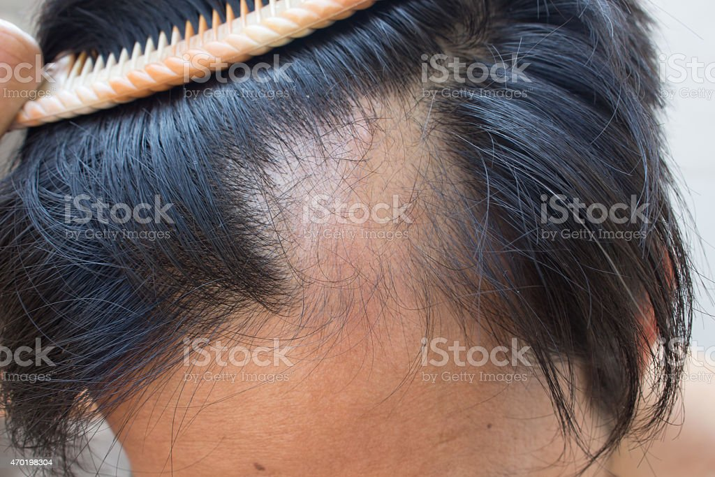 Hair Loss Stock Photo Download Image Now Istock