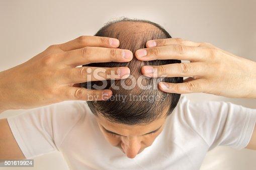 istock Hair loss 501619924