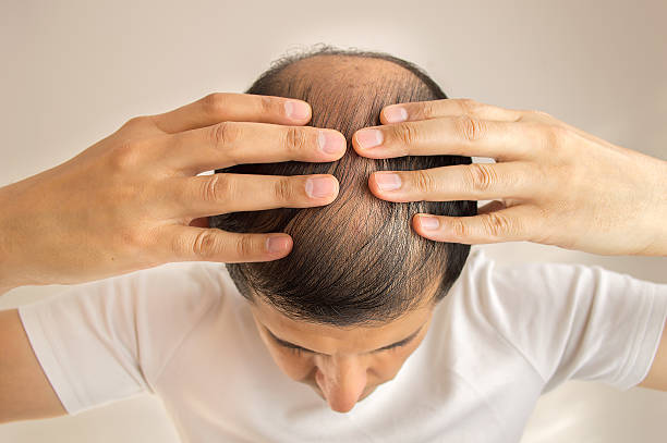 Hair loss close up of man controls hair loss human scalp stock pictures, royalty-free photos & images