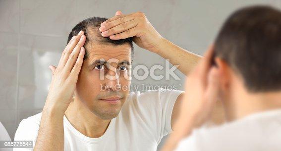istock Hair loss 685775544