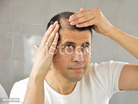 1130731761istockphoto Hair loss 685882988