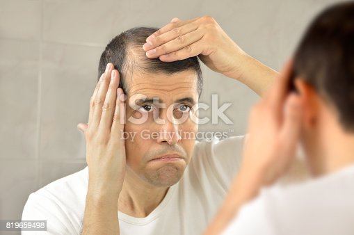 istock Hair loss 819659498