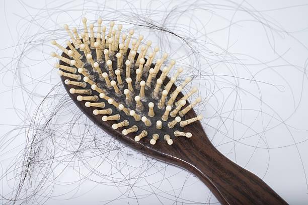 Caída del cabello problema de bruch, sobre fondo blanco - foto de stock