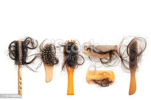 istock Hair loss problem 1134193699