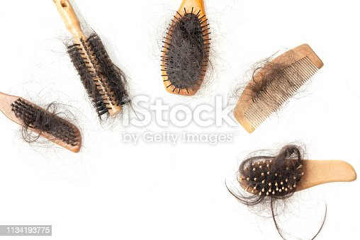 istock Hair loss problem 1134193775