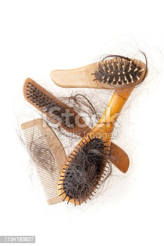 istock Hair loss problem 1134193827