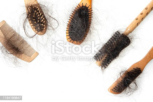 istock Hair loss problem 1134193847