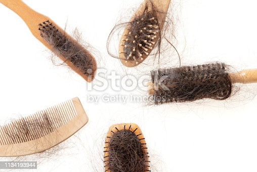 istock Hair loss problem 1134193944
