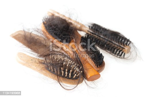 istock Hair loss problem 1134193968