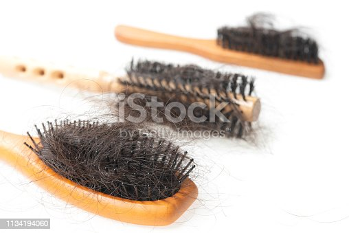 istock Hair loss problem 1134194060