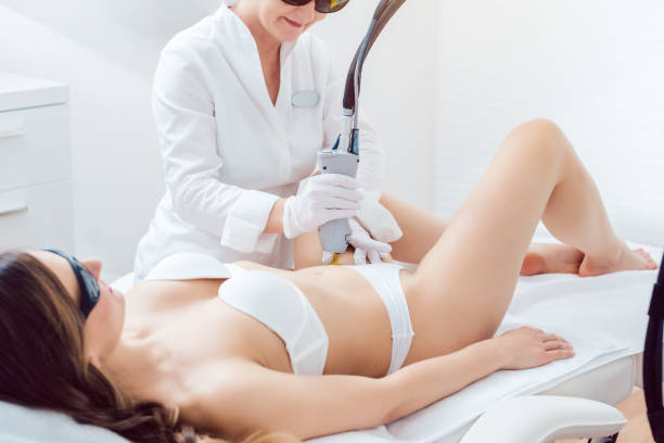 Hair removal in bikini zone using a laser device on young woman stock photo