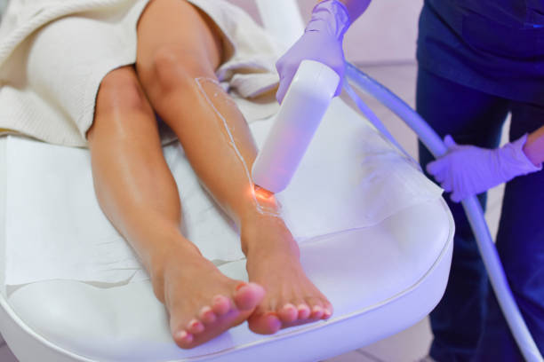 Hair removal with laser diod Epilation with diod laser laser stock pictures, royalty-free photos & images