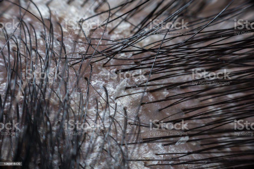 Hair scalp with dandruff and scaly from psoriasis stock photo