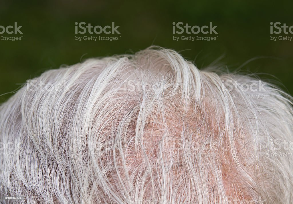 Hair thinning royalty-free stock photo