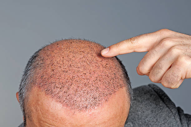 hair transplant stock photo